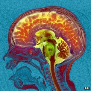 69260931_brain_cancer_mri_scan-spl-1