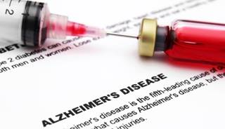 Photo of Blood Test May Predict Alzheimer Disease
