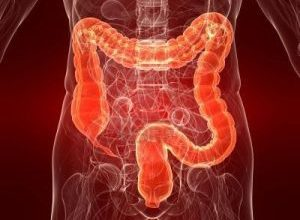 Photo of What's Good for Your Heart is Good For Your Colon