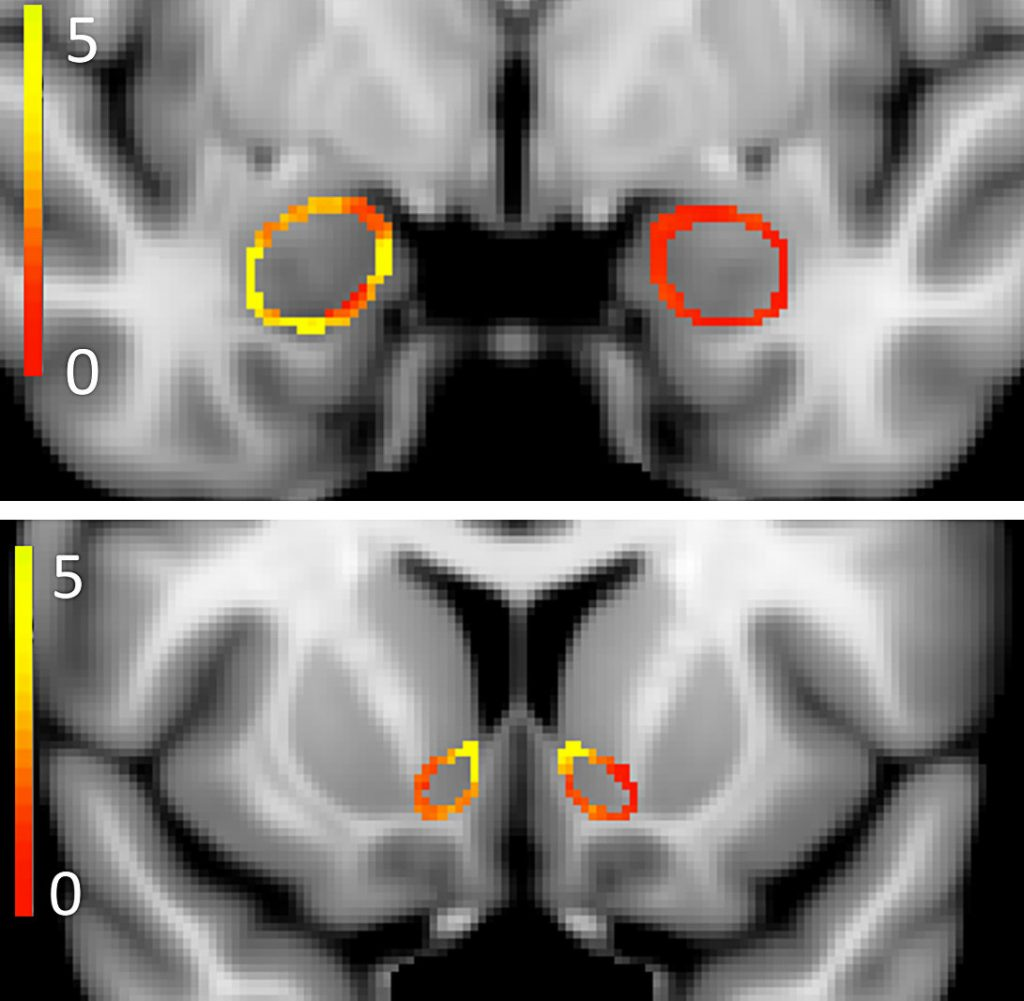 A Harvard-Northwestern study has found differences between the brains of young adult marijuana smokers and those of nonsmokers. In these composite scans, colors represent the differences — in the shape of the amygdala, top, and nucleus accumbens. Yellow indicates areas that are most different, red the least. (The Journal of Neuroscience)