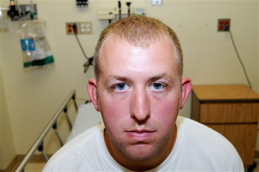 This undated photo released by the St. Louis County Prosecuting Attorney's office on Monday, Nov. 24, 2014, shows Ferguson police officer Darren Wilson during his medical examination after he fatally shot Michael Brown, in Ferguson, Mo. According to a medical record released as part of the evidence presented to the grand jury that declined to indict Wilson in the fatal shooting, doctors diagnosed Wilson with a facial contusion. (AP Photo/St. Louis County Prosecuting Attorney's Office)