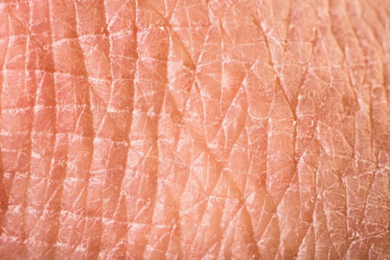 Human skin (Courtesy photo)