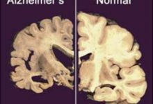 Photo of Hope for Alzheimer's Sufferers with Scientists Developing a Treatment to Restore Memory Loss