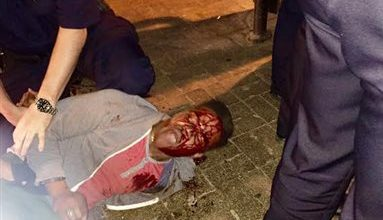 Photo of University of Virginia Student Beaten, Arrested By Alcohol Control Agents