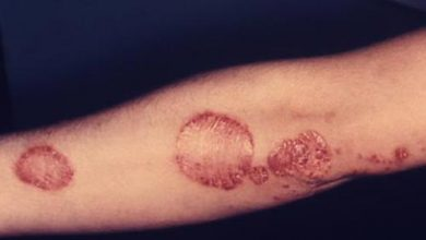 Photo of MS, Psoriasis Drugs and Deadly Brain Infections