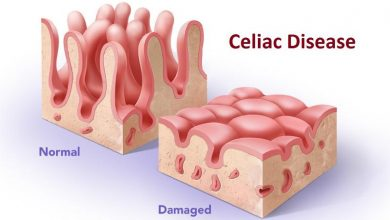 Photo of The Weird Link Between Celiac Disease and Nerve Damage
