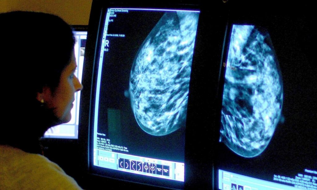 Most breast cancers are hormone sensitive, meaning they are fuelled by the female hormone oestrogen. (Rui Vieira/AP Photo)