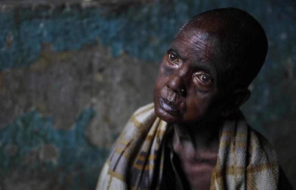 In this Aug. 25, 2014, photo, tea worker Puliya Mahali looks in vain while sitting in her house in Bundapani, 120 kilometers (75 miles) from Siliguri in the Indian northeastern estate of West Bengal. When the Bundapani tea estate closed last year, death arrived soon after. Puliya, seeming 20 years older than her 50, sat emaciated on the floor, her tiny arms mummified by malnutrition. She cannot move anymore, so her husband Ramesh cannot leave her to look for work.  (AP Photo /Manish Swarup)