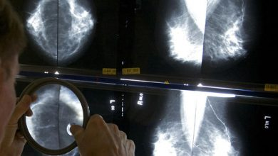 Photo of Screening Cuts Risk of Breast Cancer Death Almost in Half