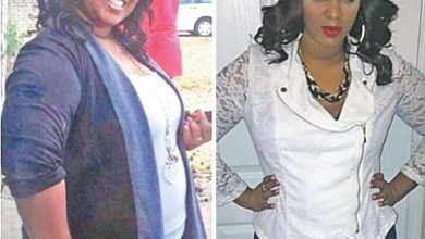Photo of Blacks and Weight Loss: Why So Few Go Under the Knife
