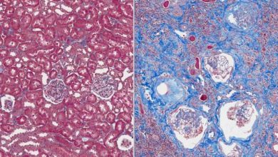 Photo of New Therapy May Reverse Cell Damage from Kidney Fibrosis