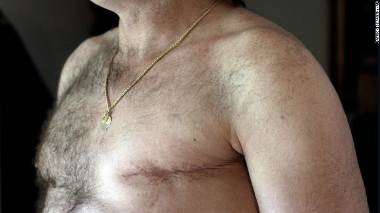 More men are opting to have preventative double mastectomies, according to a study. (AP Photo)