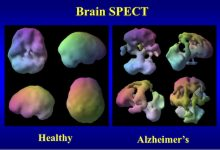 Photo of Train Your Brain: Tackling Alzheimer's Disease